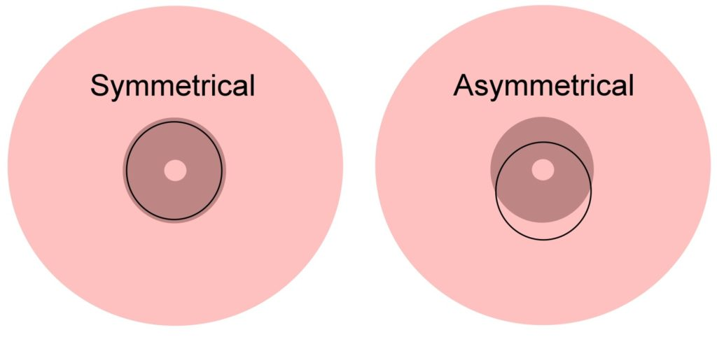 Symetrical Asymetrical Latch Breastfeeding