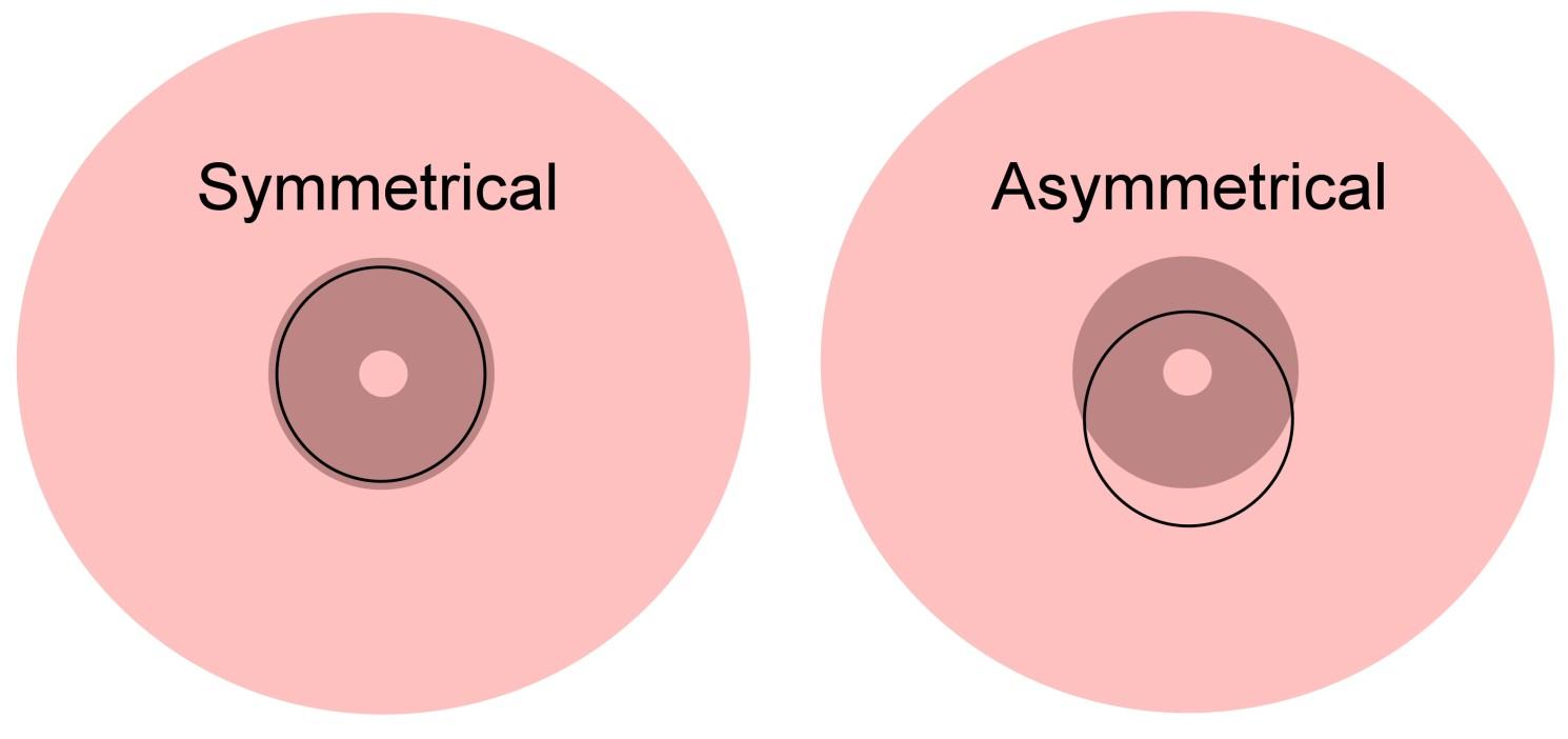 How To Asymmetrical Latch Breastfeeding Lactation 911